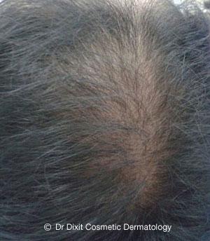 Hair-female-1