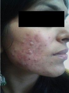 acne- after - first stage