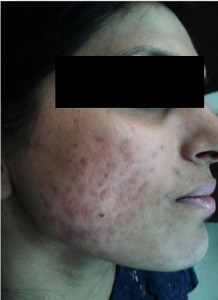 Acne - After - 2nd Stage