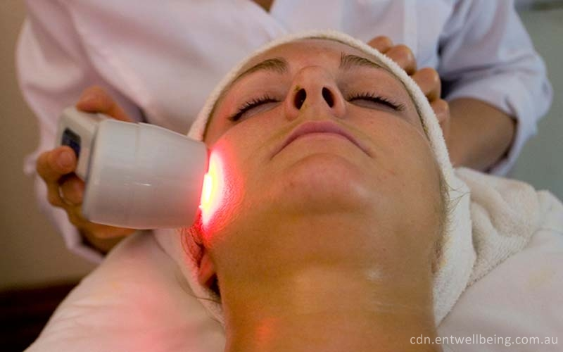 laser hair removal in banglaore
