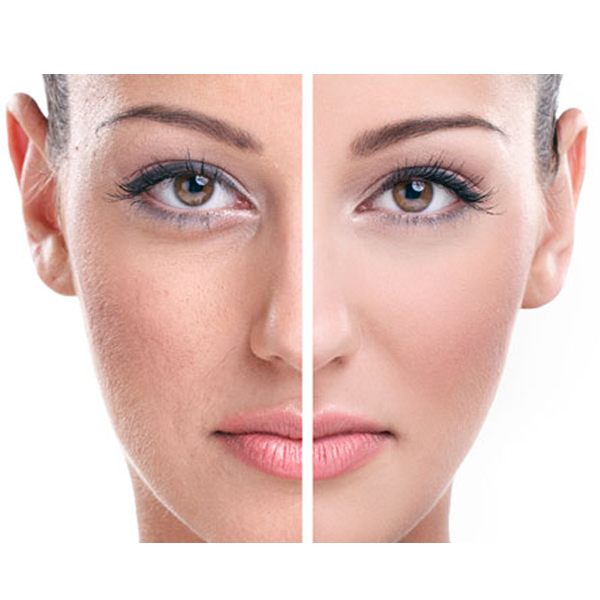 Facial Pigmentation Bangalore