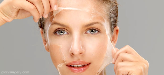 skin peeling treatment