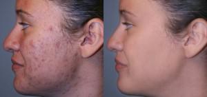 Treatment for acne scar