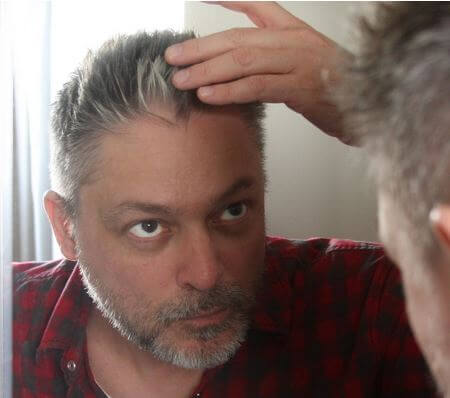 Stress causing hair greying