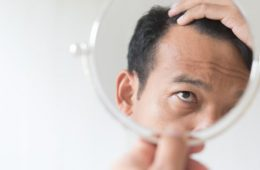 How to Reduce Hair Loss | Dr Rasya Dixit