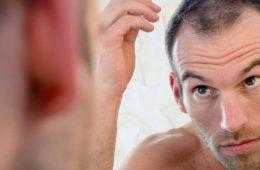 Hair Loss Treatment for Men   Dr Rasya Dixit