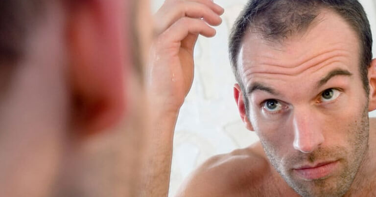Hair Loss Treatment for Men | Dr Rasya Dixit