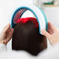 hair loss laser treatment