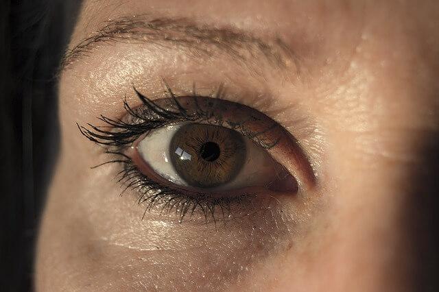 Dark Circles around Eyes